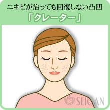 クレーターの悩み|東京 三軒茶屋 からだのことなら|肌・頭皮(薄毛)の悩みの改善に「ヒト幹細胞と植物幹細胞による」メディカル系フェイシャルエステケア【FCR・リアボーテハーブ・ACトリートメント・クレアスキン基礎化粧品の正規取扱いサロン】