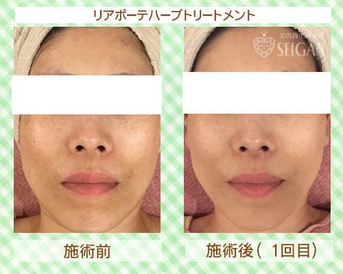 初めてリアボーテハーブピーリングを受けてみた|東京 三軒茶屋 からだのことなら|肌・頭皮(薄毛)の悩みの改善に「ヒト幹細胞と植物幹細胞による」メディカル系フェイシャルエステケア|FCR・リアボーテハーブ・ACトリートメント・クレアスキン基礎化粧品の正規取扱いサロンです。ニキビ・ニキビ跡・クレーター・色素沈着・シワ・シミ・たるみ・毛穴のお悩みに肌質改善を