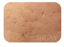 リアボーテお試し幹細胞トリートメント |【東京 世田谷区】「三軒茶屋 からだのことなら」は、肌・髪・体・心の悩み改善に「丁寧に寄り添う」メディカル系ケア施術院です。肌質改善・加齢肌対策・薄毛・抜け毛をはじめ、体調不良・痛みなどでお悩みなら1度ご来院下さい。