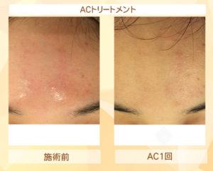 【東京 世田谷区】「三軒茶屋 からだのことなら」は、肌・髪・体・心の悩み改善に「丁寧に寄り添う」メディカル系ケア施術院です。肌質改善・加齢肌対策・薄毛・抜け毛をはじめ、体調不良・痛みなどでお悩みなら1度ご来院下さい。