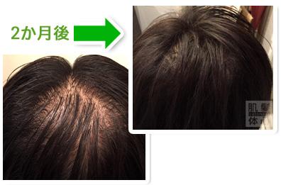 お試し幹細胞頭皮トリートメント|【東京 世田谷区】「三軒茶屋 からだのことなら」は、肌・髪・体・心の悩み改善に「丁寧に寄り添う」メディカル系ケア施術院です。薄毛・抜け毛・フケ・弱毛・頭皮のトラブル・白髪などでお悩みなら1度ご来院下さい。ACトリートメントとリアムール商品を使ったヘッドマッサージで頭皮ケアを行います。