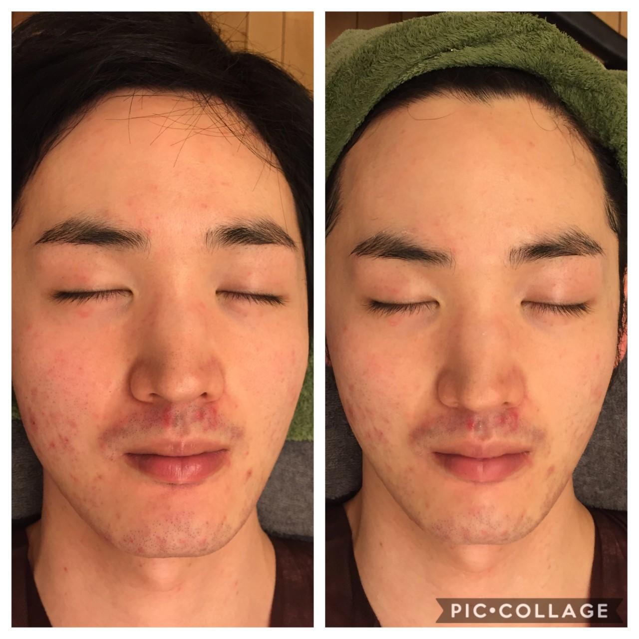 本気のメンズ美容フェイシャルサロンをお探しなら、東京 三軒茶屋からだのことならへ|男性の乾燥肌・ニキビ肌・カミソリ負け・テカリ肌・ザラザラ肌・薄毛の悩みの改善に「ヒト幹細胞と植物幹細胞による」メディカル系フェイシャルエステケア